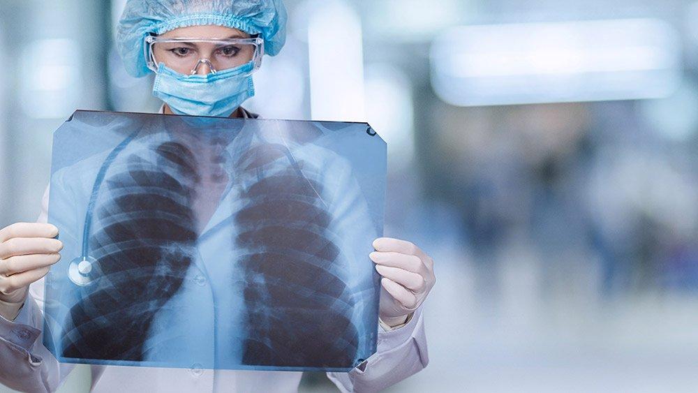 Becas de investigación sobre el cáncer de pulmón en mujeres